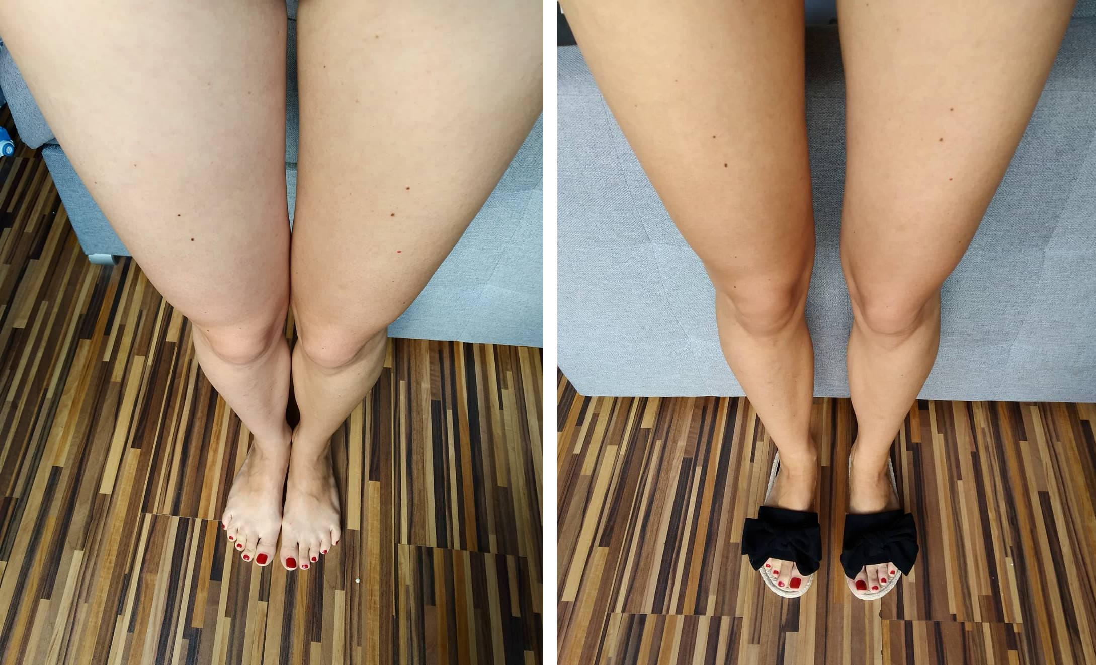 kolaz-nogi